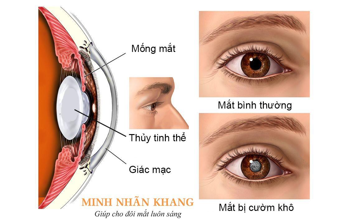 Mắt của người bệnh bị cườm khô, đục thủy tinh thể